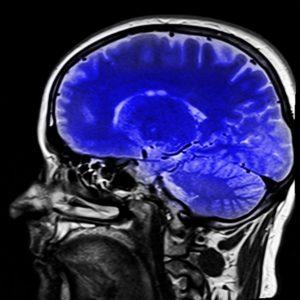 Тайна бессознательной мозговой деятельности